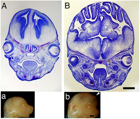 Cross-sections of mouse brains
