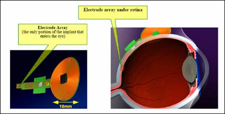 close-up of electrode array, cross-section of eye with electrode array in place