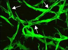 pre-treatment blood vessels