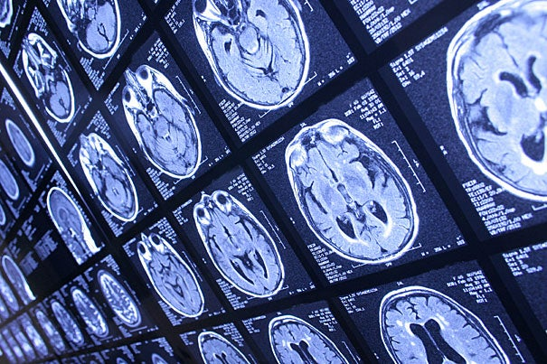 """Researchers have developed a biologically based test for autism, which uses MRI to measure deviations in brain circuitry and can detect the disorder in individuals with high-functioning autism with 94 percent accuracy. """"Indeed, we have new ways to discover more about the biological basis of autism and how to improve the lives of individuals with the disorder,"""" said senior author Janet Lainhart, principal investigator of the research."""
