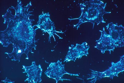 Shown are cancer cells in culture from human connective tissue. Cancer cells survive, in part, by ignoring signals to become senescent and continuing to make copies of themselves at will, or by entering a quiescent state from which they can be re-activated.
