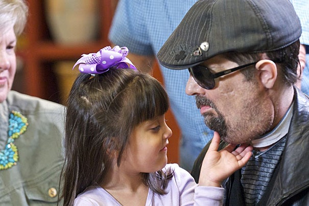 "Dallas Wiens' daughter, Scarlette, checks out her father's face. ""She was amazed. She actually said, 'Daddy, you're so handsome,'"" said Wiens, who received a full face transplant."