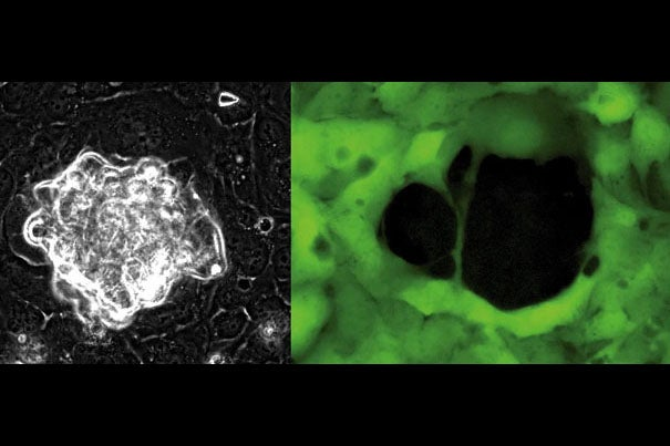 Ovarian cancer cells (left), in white, use physical force to push their way through a layer of mesothelial cells. The mesothelial cells (right), labeled green, are left with a gaping hole, the result of the bullying cancer cells.
