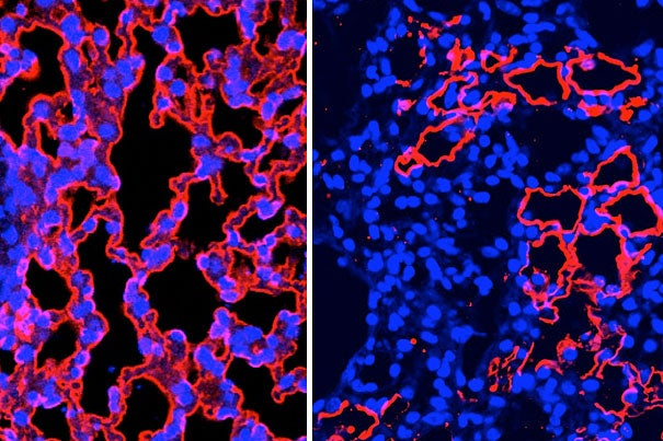 A confocal microscope image of mouse lung tissue regenerating (from left to right).
