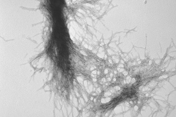 """""""Diseases such as Huntington's, Parkinson's, and Alzheimer's disease have different causative factors, but they share common themes — such as aggregation of misfolded proteins — and a unifying end point, the degenerative loss of neurons,"""" says Harvard Medical School Professor of Neurology Dimitri Krainc. In this image, transmission electron microscopy demonstrates the fibrillar nature of huntingtin aggregates."""
