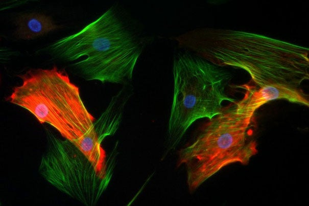 Cultured pericytes (red) and myofibroblasts (green) are two prominent noncancer cells within a tumor.