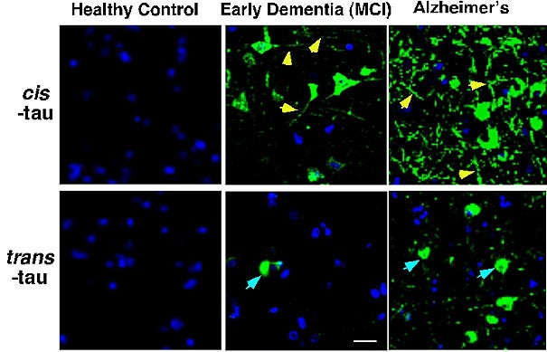 The development of new Alzheimer's antibodies has made it possible to distinguish between two forms of tau protein, and has demonstrated that the pathological cis form appears in the brain cells of patients with early dementia and, as dementia progresses to Alzheimer's, rapidly accumulates at the location that is critical for memory (as indicated by arrows).