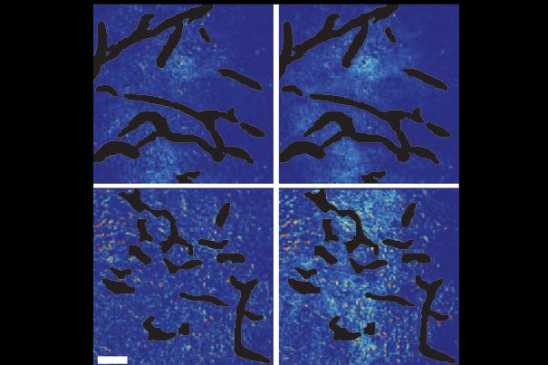 A new study shows that combining angiogenesis inhibitors and nanomedicines only improves cancer treatment when the nanomedicines are at the small end of a size range. Top panels show the control setups. Bottom panels show mammary tumor tissue after normalization of blood vessels. Few of the large nanoparticles are visible in the bottom left panel, while the smaller nanoparticles have penetrated well, as seen in the bottom right panel.