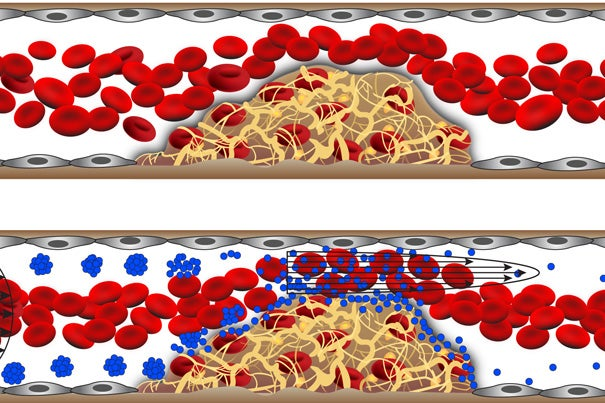 The shear-activated nanotherapeutic breaks apart and releases its drug when it encounters regions of vascular narrowing.