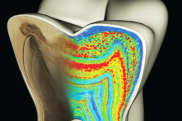 Molar tooth model with the cut face showing color-coded barium patterns merging with a microscopic map of growth lines, which have been accentuated to reflect their ringlike nature.
