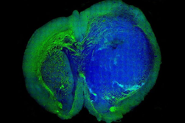 This image of a human glioblastoma brain tumor in the brain of a mouse was made with stimulated Raman scattering, or SRS, microscopy. The technique allows the tumor (blue) to be easily distinguished from normal tissue (green) based on faint signals emitted by tissue with different cellular structures.