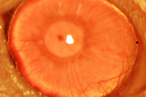 A restored functional cornea (photo 1). The  composite image (photo 2) shows the process. In this study, researchers were able to use antibodies detecting the marker molecule to zero in on the stem cells in tissue from deceased human donors and use it to regrow anatomically correct, fully functional human corneas in mice.