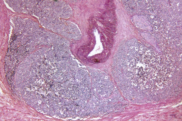 """This study follows our initial publication on vasectomy and prostate cancer in 1993, with 19 additional years of follow-up and tenfold greater number of cases. The results support the hypothesis that vasectomy is associated with an increased risk of advanced or lethal prostate cancer,"" said co-author Lorelei Mucci, associate professor of epidemiology at Harvard School of Public Health."