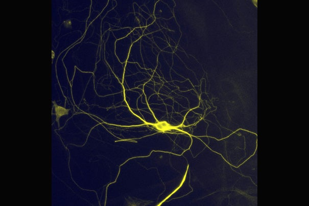 Harvard researchers have successfully converted mouse and human skin cells into pain-sensing neurons. The neurons respond to a number of stimuli that cause acute and inflammatory distress.
