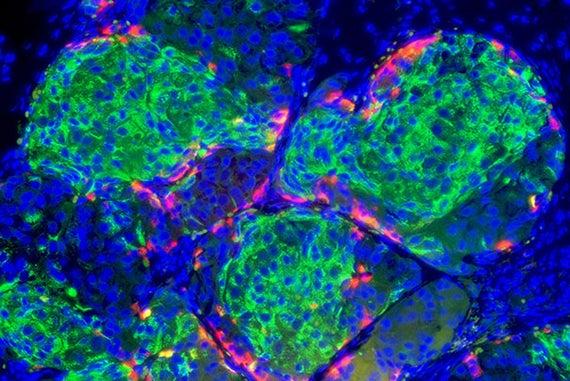 Human stem cell derived beta cells