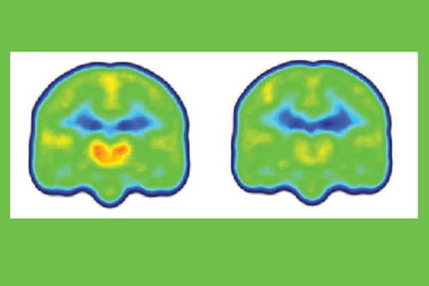 Images created by averaging PET scan data from chronic pain patients (left) and healthy controls (right) reveals higher levels of inflammation-associated translocator protein (orange/red) in the thalamus and other brain regions of chronic pain patients.