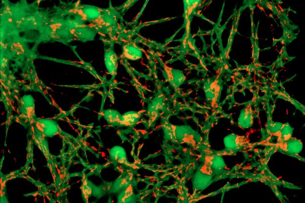 Researchers have proposed a new model of Alzheimer's that suggests mitochondria — cellular power plants — might be at the center of the disease. Pictured are neurons with mitochondria.