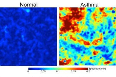 The images show human bronchial epithelial cells obtained from a normal donor (left) and an asthmatic donor. The color-coded bar reflects the speed at which the cells move.