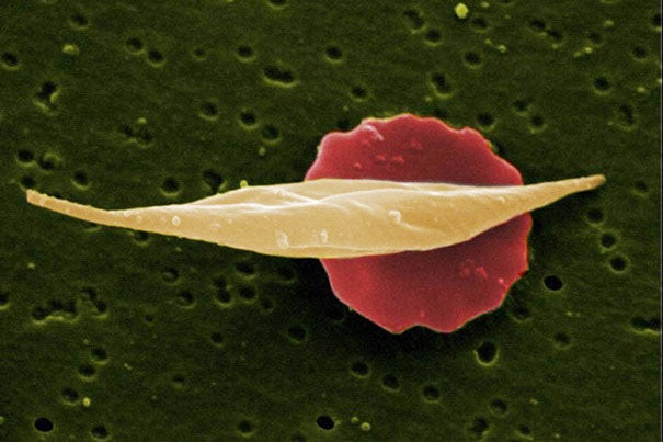 Researchers from Dana-Farber/Boston Children's Cancer and Blood Disorders Center have found that changes to a small stretch of DNA may circumvent the genetic defect behind sickle cell disease.