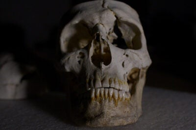Phineas Gage's skull, along with the tamping iron that bore through it, are two of the approximately 15,000 artifacts and case objects conserved at the Warren Anatomical Museum, which is a part of the Center for the History of Medicine in Harvard's Francis A. Countway Library of Medicine.