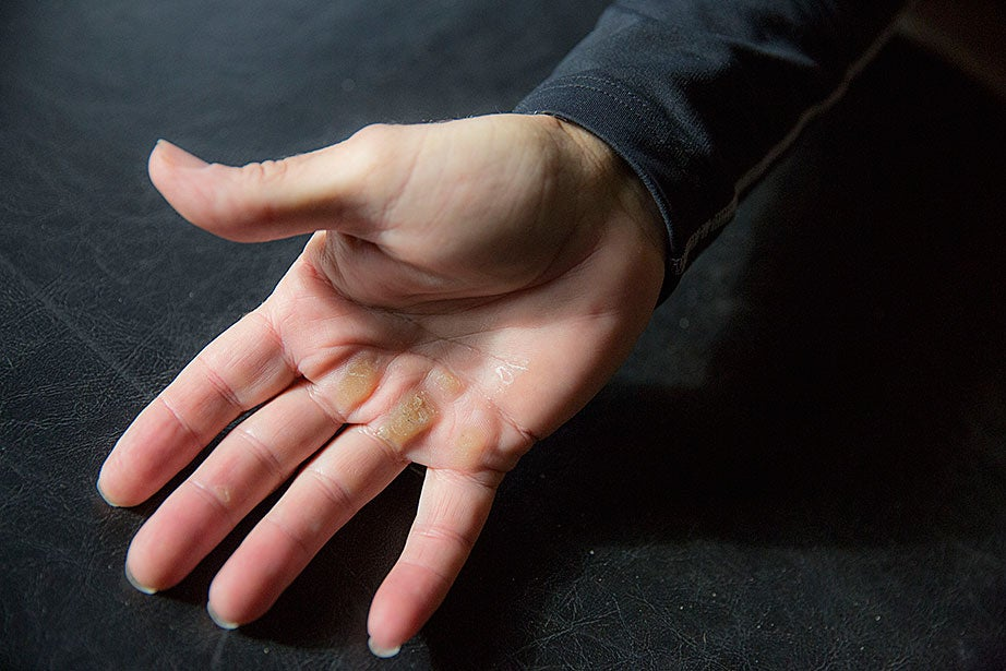 Harvard Medical School Professor Mark Abelson, a former professional water skier, shows calluses from training.