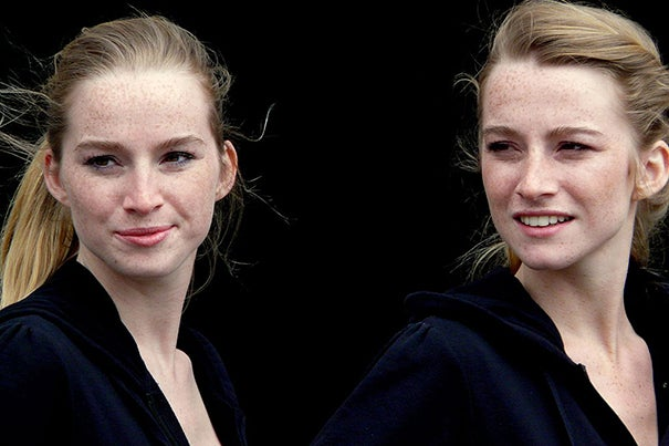 Researchers looked at more than 200,000 twins who participated in the Nordic Twin Study of Cancer. The twins were followed over an average of 32 years between 1943 and 2010.