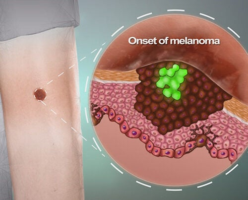 Most of the time skin moles are harmless, but they occasionally turn into melanoma, a life-threatening skin cancer. Leonard Zon and colleagues found that this happens when a single cell regresses back to a stem cell state and starts to divide and invade the surrounding tissue.