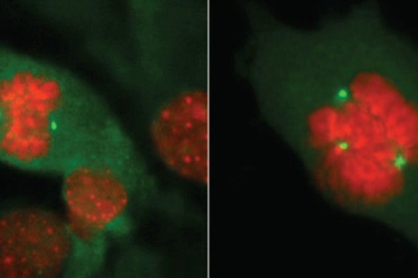 The study of normal cell division in a breast (left) versus the mutation BRCA1 or BRCA2 (right) has expanded as Harvard researchers examine levels of Ki67, a molecular marker in healthy breast tissue that can predict a woman's risk of getting breast cancer.