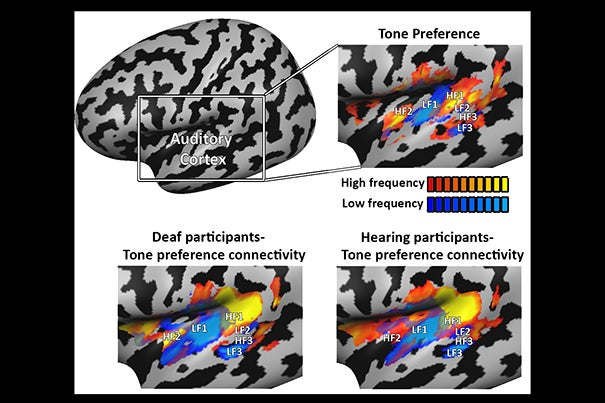 Mapping tone-preference connectivity patterns in deaf people shows the auditory cortex develops even without sounds. The connectivity profile was virtually identical to that of hearing people, suggesting it develops based on genetic and innate constraints, not on experience.