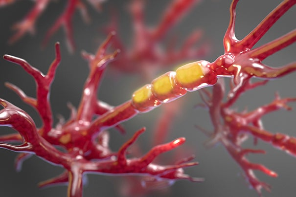 Therapies already in development aim to block the activity of a particular enzyme in order to halt the stripping of axons and prevent neuronal dysfunction in people with amyotrophic lateral sclerosis, or ALS.