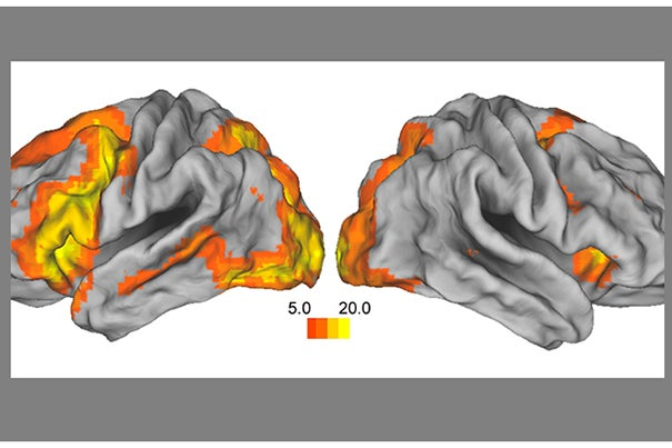 A functional MRI scan shows the network of brain regions that support memory. The decline in estradiol, a sex steroid hormone that declines during menopause, alters brain activity in this network.