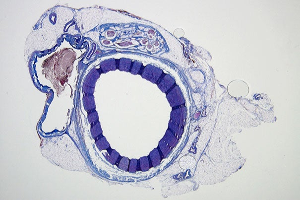 Histological staining of an untreated vessel where blood can freely flow (image 1) and a vessel (image 2) that was successfully filled and embolized with the shear-thinning biomaterial (STB). Over time, the STB was degraded and replaced by natural tissue in with only remnants of the STB (indicated by asterisks). Credit: Wyss Institute at Harvard University