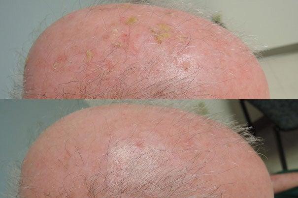 Topical treatment clears precancerous skin lesions – Harvard