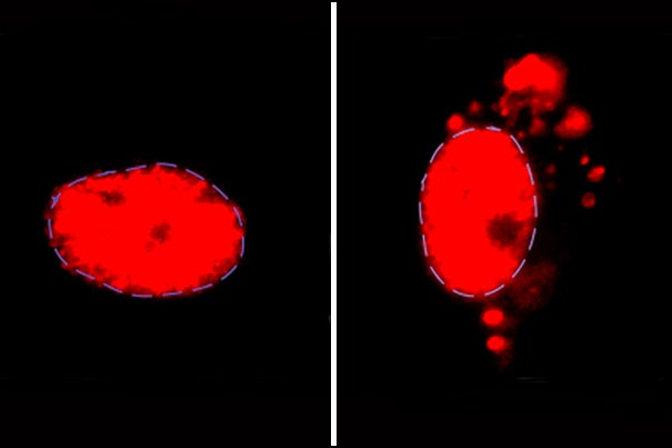 Normally, U2-snRNP (red) is found in the nucleus of motor neurons (left), but accumulates outside the nucleus in ALS or FTD patient-derived neurons with C9ORF72 mutation.