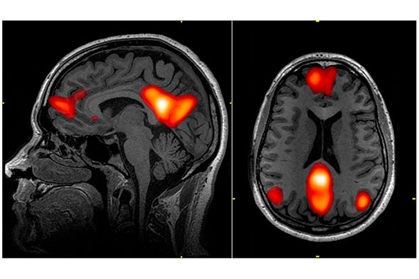 Using fMRI, EEG to search for consciousness in ICU patients