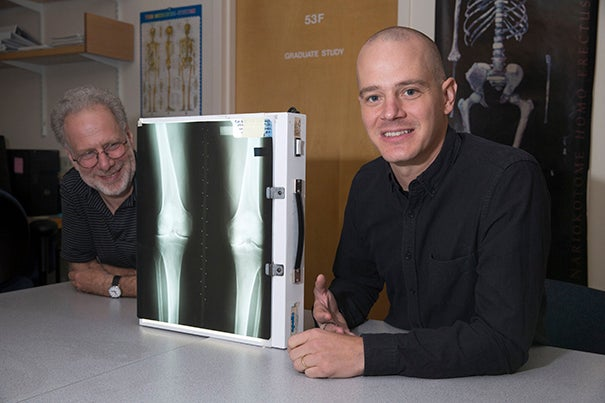 A study by postdoctoral fellow Ian Wallace (right) and Daniel Lieberman, Edwin M. Lerner II Professor of Biological Sciences, upends the belief that the disease is a wear-and-tear condition.