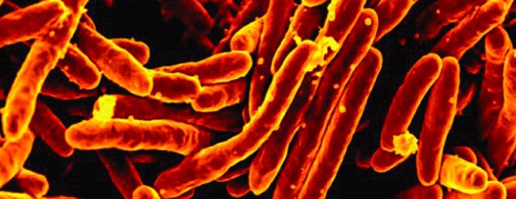 Tuberculosis.