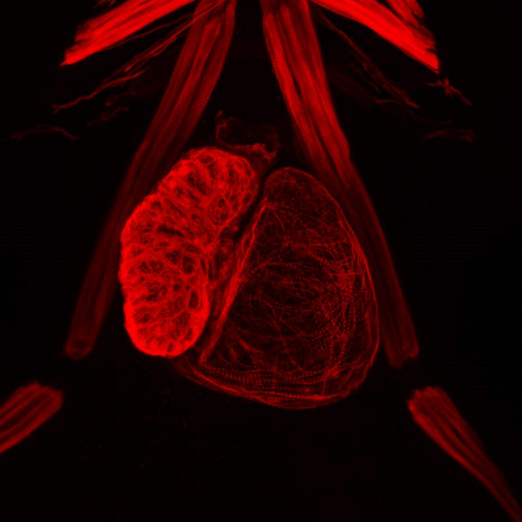 Visualization of heart muscles.