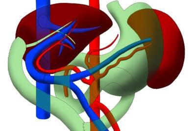 Left_Liver_Transplant-1