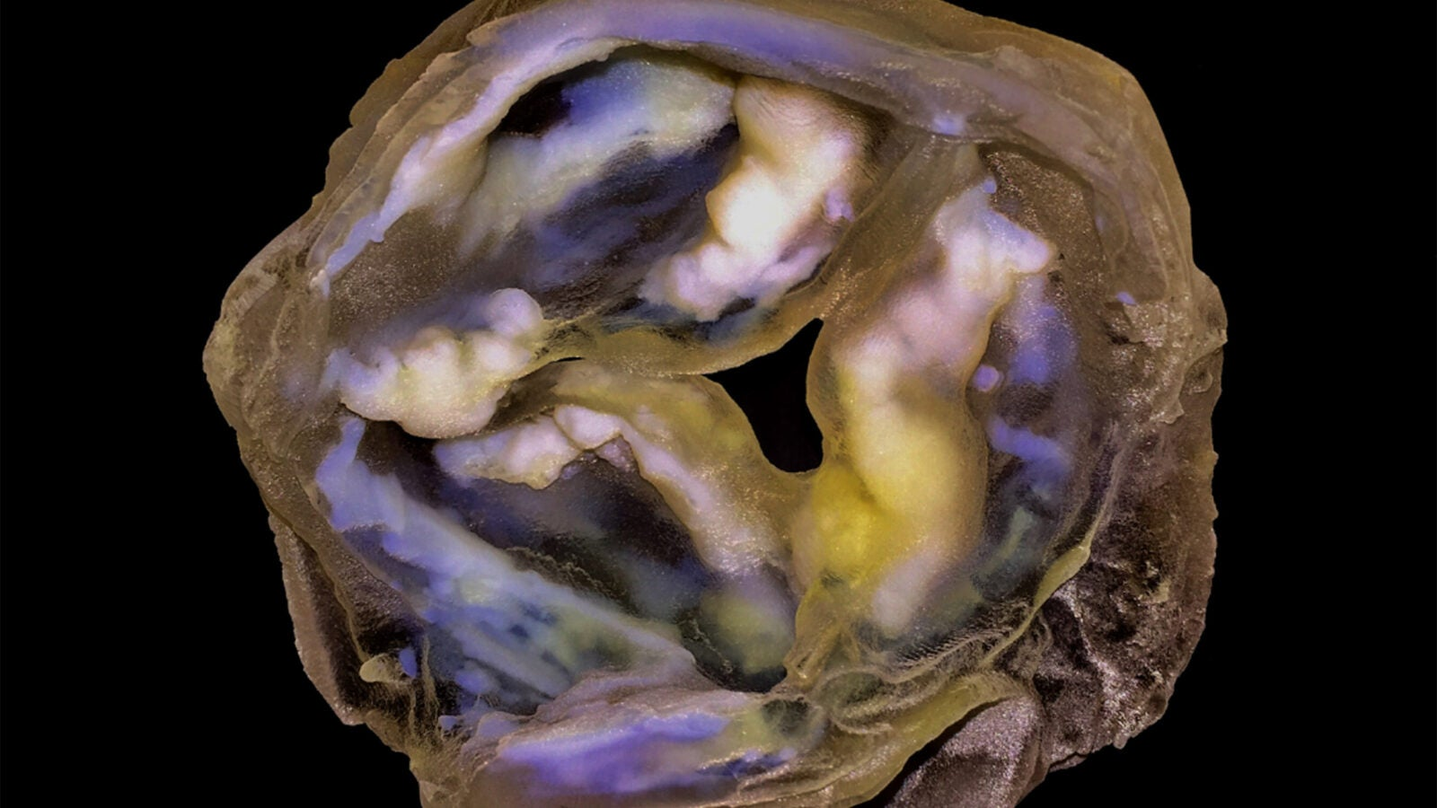 calcified heart valve