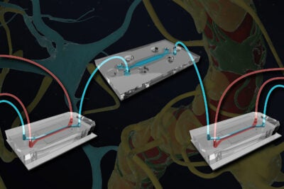 brain-chip-with-blood-vessels