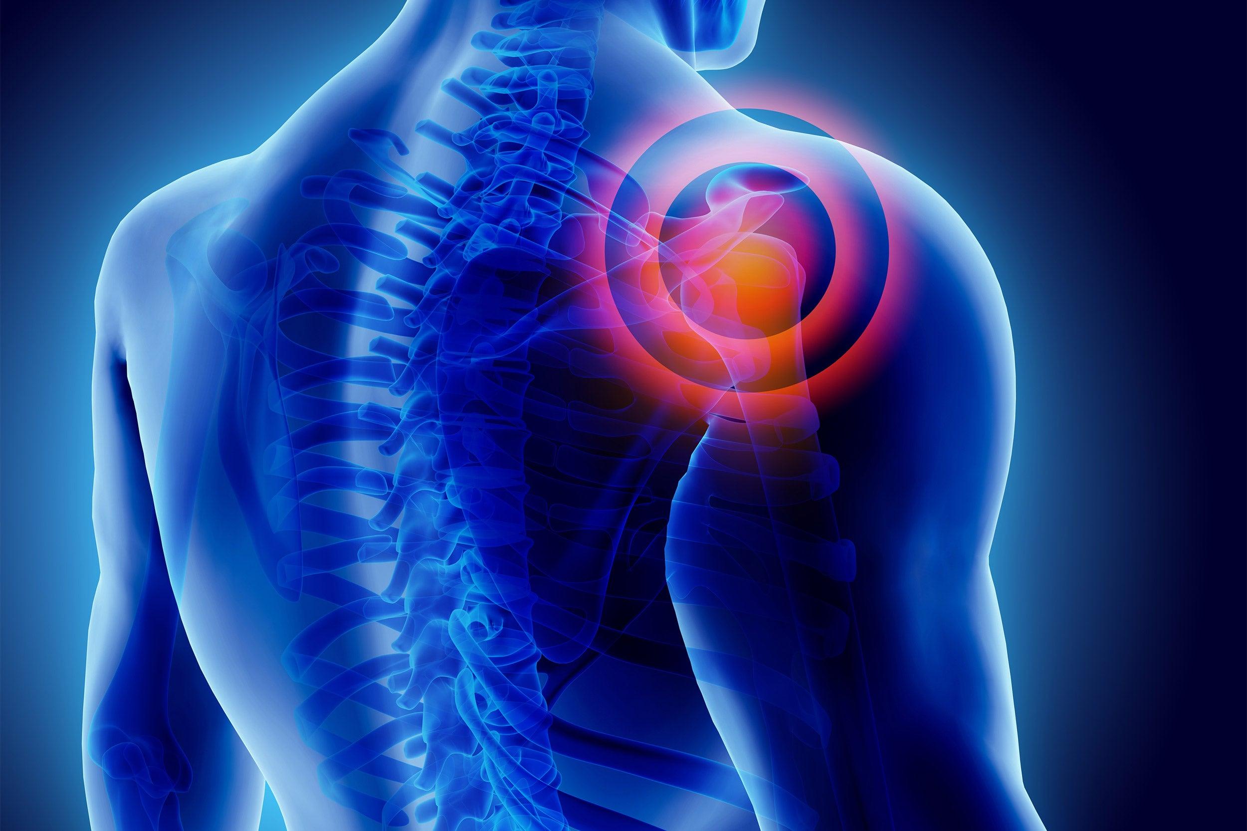 3D Illustration of shoulder painful,