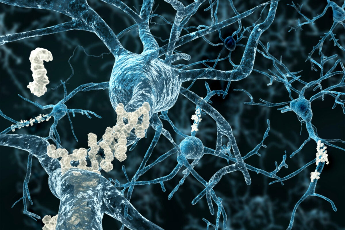 Amyloid plaques on axons of neurons affected by Alzheimer's