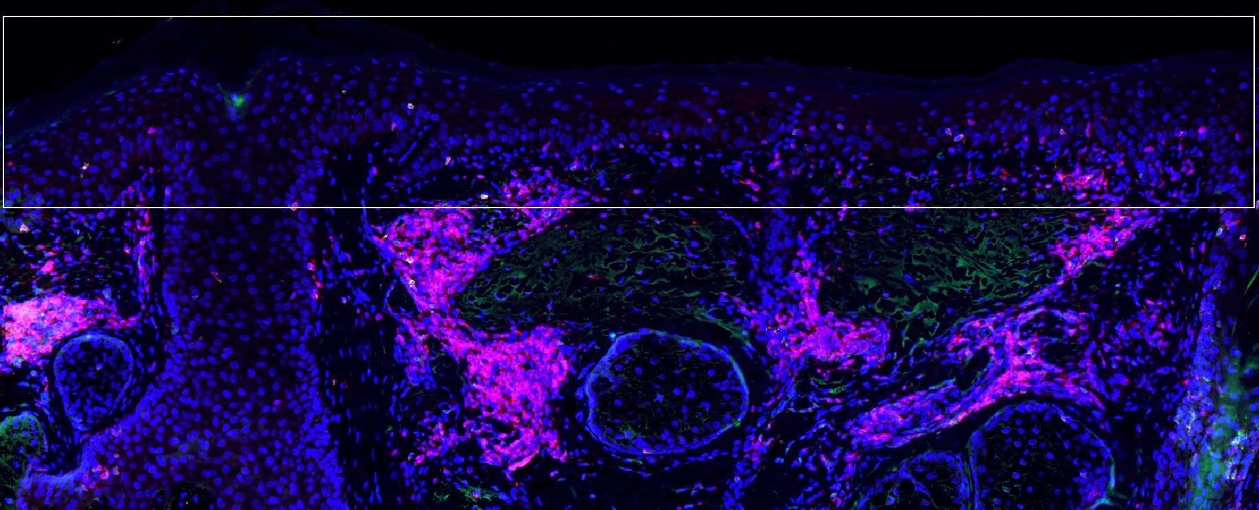 Precancerous actinic keratosis cells –