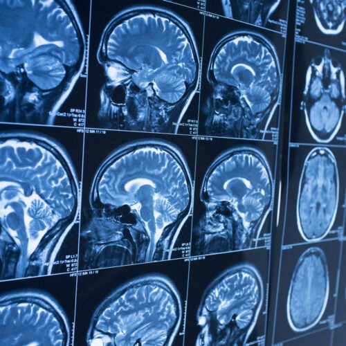 Measuring brain function image of scans