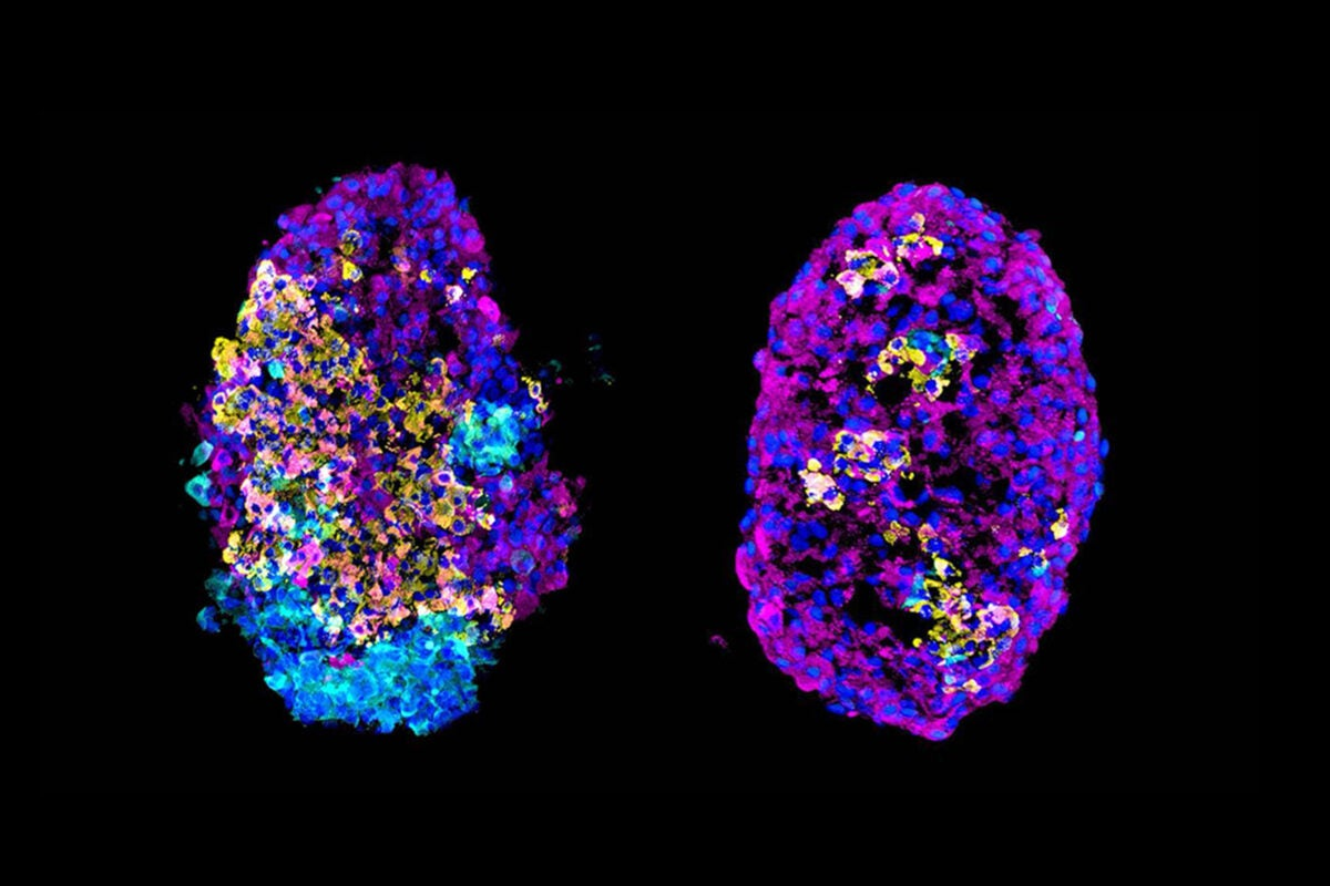 two multicolored cell clusters