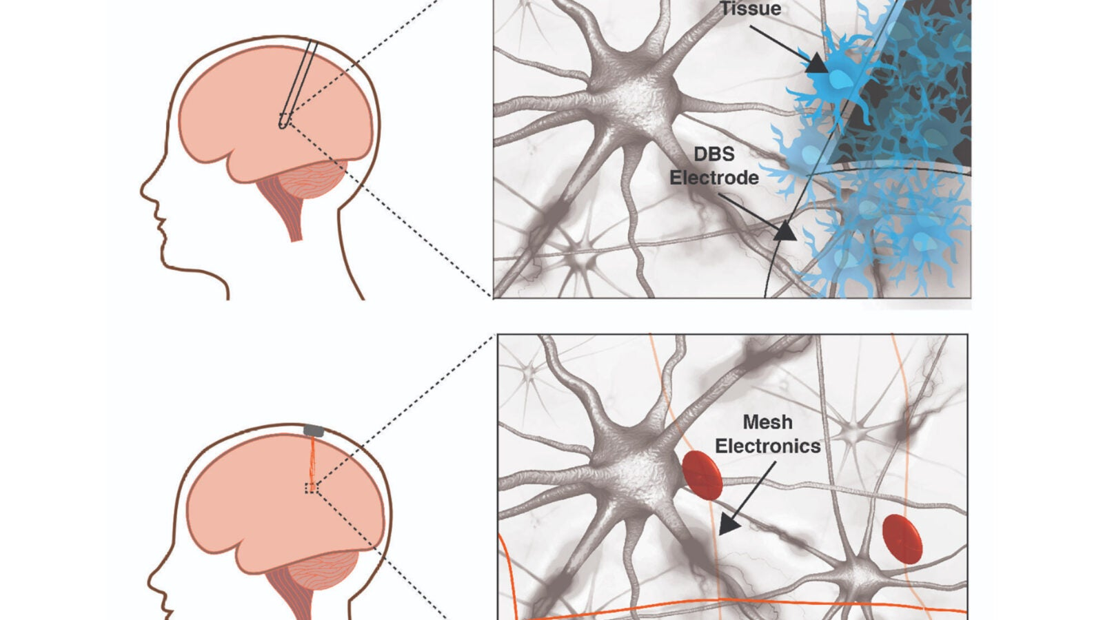 raditional-neural-electrodes-versus-mesh-electronics