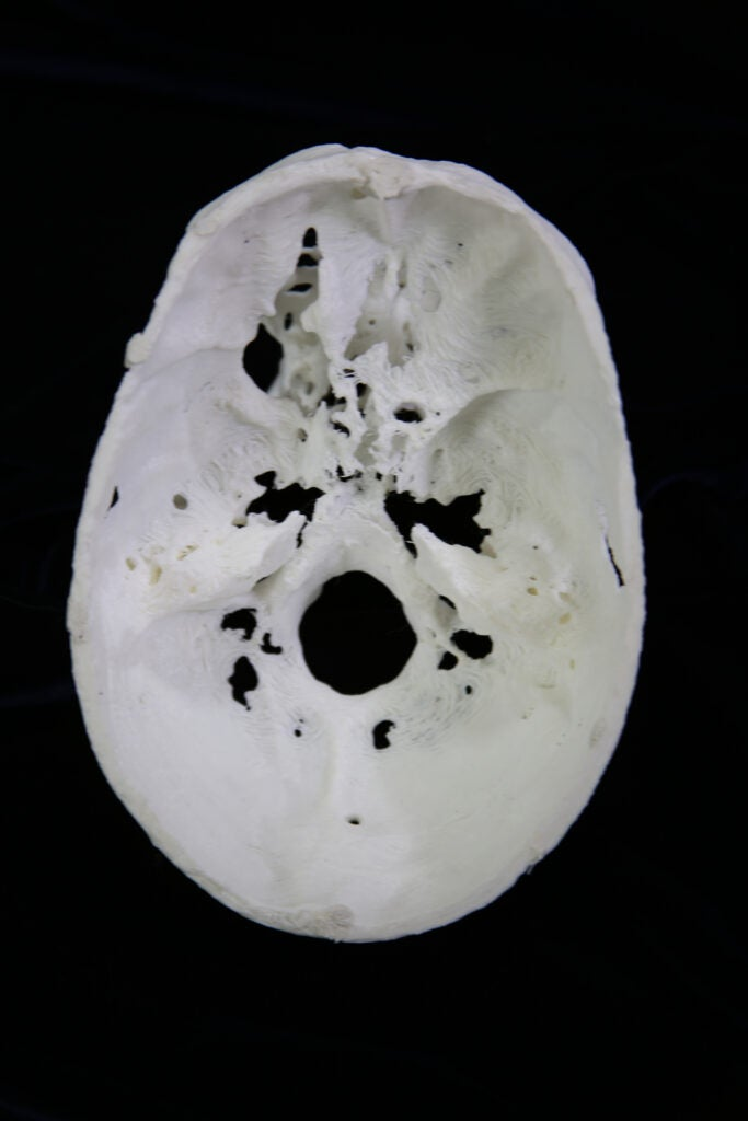3D printed human skull model; underside view with a hole in the top