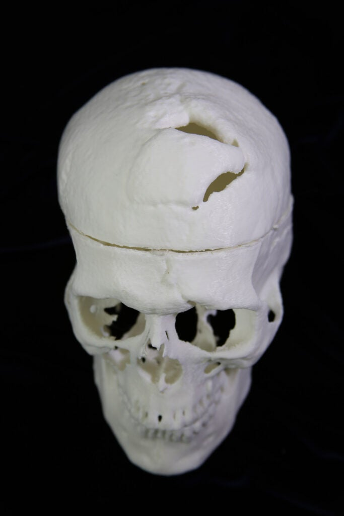 3D printed human skull with a hole in the top