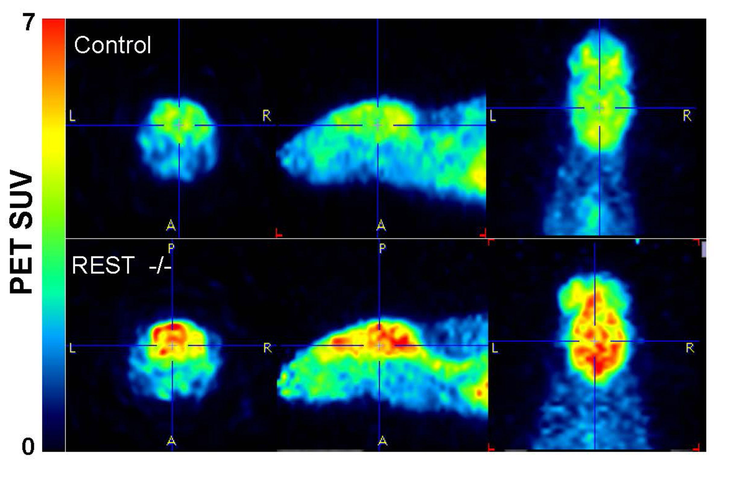 Mice lacking the protein REST (bottom) showed much higher neural activity in the brain than normal mice.
